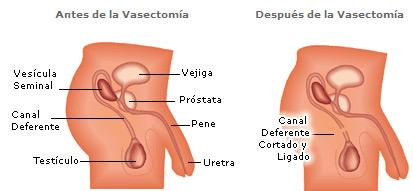 vasectomía torreon